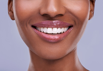 Woman smiling after receiving oral appliance therapy at Jon C. Packman DDS in Statesville, NC