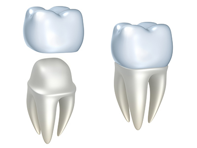 Computer generated image of E4D Same Day Crowns at Jon C. Packman DDS