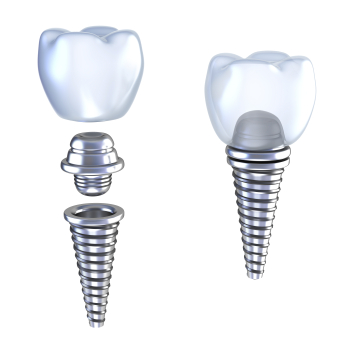 Computer generated image of Dental Implants at Jon C. Packman DDS