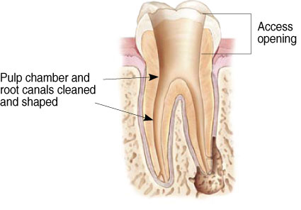 Illustration of Root Canal Therapy at Jon C. Packman DDS in Statesville, NC